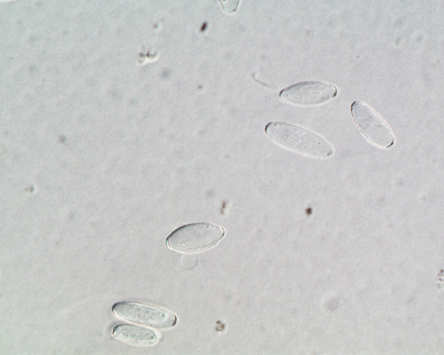 Microphoto of Oidium spores from a spore trap sample