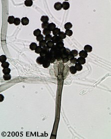Microscopic photo of Memnoniella echinata